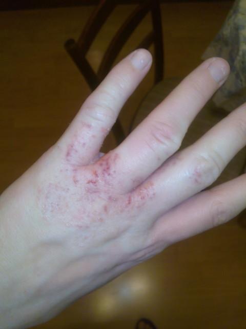на одном пальце руки трескается кожа