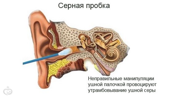 Как убрать пробку с уха у ребенка в домашних условиях
