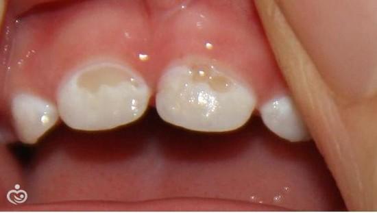 Слезает эмаль на зубах у детей