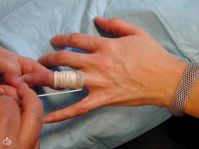 Что делать если обручальное кольцо маленькое