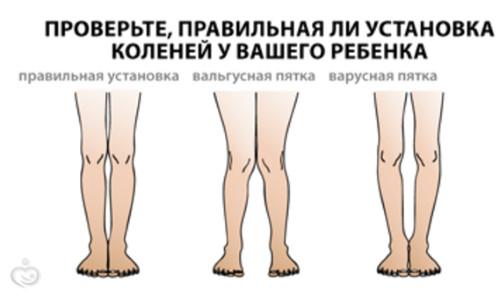 томография тазобедренного сустава минск