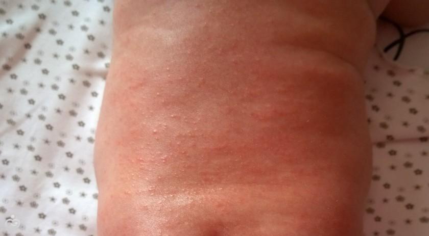 аллергия на коровий белок отзывы