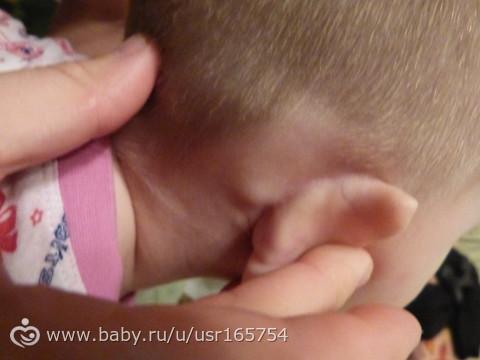 Опухоль за ухом дети фото